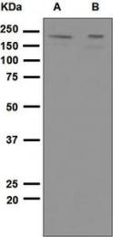 NBP1-95177 - CD140a / PDGFRA