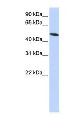 NBP1-57968 - PDIA6 / P5