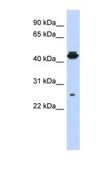 NBP1-56732 - PDIK1L
