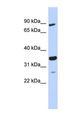 NBP1-56733 - PDIK1L