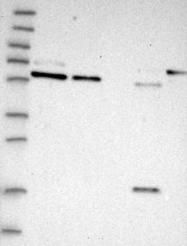 NBP1-92252 - PDIA5