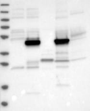 NBP1-92253 - PDIA5