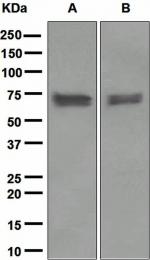NBP1-95527 - PDPK1