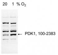 NB100-2383 - PDK1