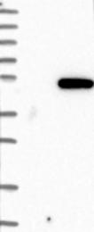 NBP1-85955 - PDK1