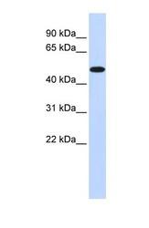 NBP1-54699 - PDK2