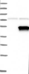 NBP1-87307 - PDK2