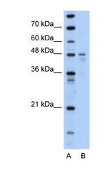 NBP1-54723 - PDK4