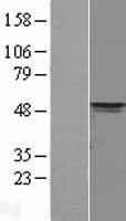 NBL1-14252 - PDK4 Lysate