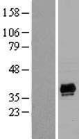 NBL1-14254 - PDLIM2 Lysate