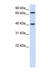 NBP1-55197 - PDLIM3