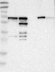 NBP1-84842 - PDLIM5