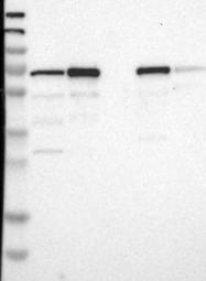 NBP1-84843 - PDLIM5