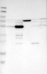 NBP1-84841 - PDLIM7