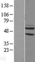 NBL1-14258 - PDP2 Lysate