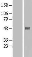 NBL1-14260 - PDPK1 Lysate