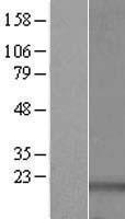 NBL1-14263 - PDRG1 Lysate