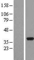 NBL1-14267 - PDXK Lysate