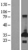 NBL1-14277 - PECR Lysate