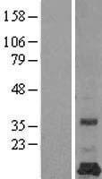 NBL1-14286 - PEMT Lysate
