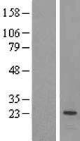 NBL1-14288 - PEMT Lysate