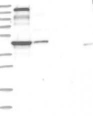 NBP1-84612 - PLEKHA5