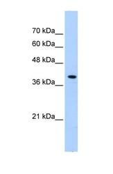 NBP1-59745 - Peroxin 10 / PEX10 / RNF69