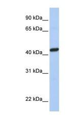 NBP1-60050 - Peroxin 10 / PEX10 / RNF69