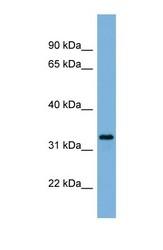 NBP1-59704 - Peroxin 11A / PEX11A