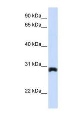 NBP1-59705 - Peroxin 11A / PEX11A