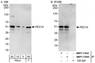 NBP1-71842 - Peroxin 14 / PEX14