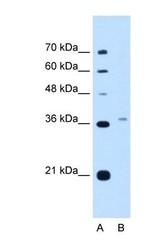NBP1-52960 - Peroxin 3 / PEX3