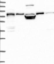 NBP1-87185 - Peroxin 5 / PEX5