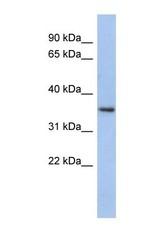 NBP1-57578 - Peroxin 7 / PEX7