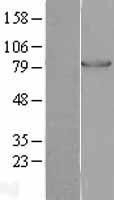 NBL1-14316 - PFK-1 Lysate