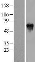 NBL1-14311 - PFKFB2 Lysate