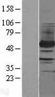NBL1-14313 - PFKFB4 Lysate