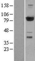 NBL1-14317 - PFKP Lysate