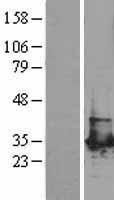 NBL1-14323 - PGAM1 Lysate