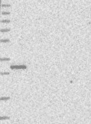 NBP1-92258 - PGAM5