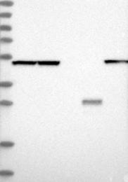 NBP1-85925 - PGD / PGDH