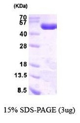 NBP1-41231 - PGD / PGDH