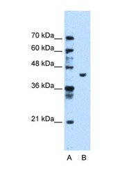 NBP1-55154 - Phosphoglycerate kinase 1 (PGK1)
