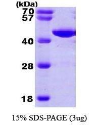 NBP1-30187 - Phosphoglycerate kinase 1 (PGK1)