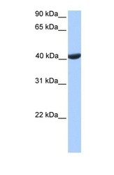 NBP1-54390 - Phosphoglycerate kinase 2 (PGK2)