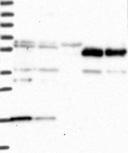 NBP1-92259 - PGL2 / SDHAF2