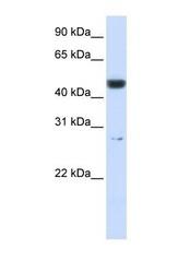 NBP1-56387 - PGLS / 6PGL