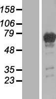 NBL1-14339 - PGM2L1 Lysate