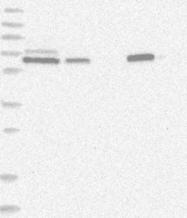 NBP1-89208 - PGM3