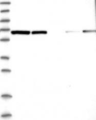 NBP1-89209 - PGM3